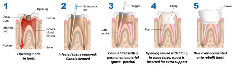 Family Dental Care - Campbelltown - Root Canal Therapy - stages