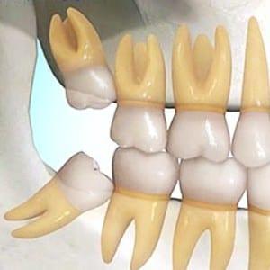 Campbelltown Family Dental Care Wisdom Teeth