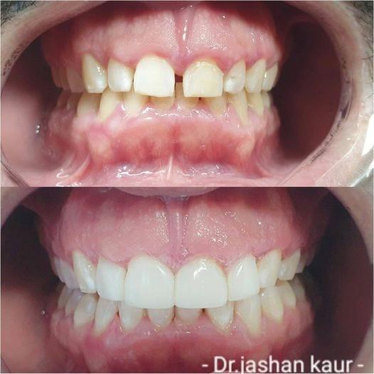 Campbelltown Family Dental Care Composite veneer 19-11-20
