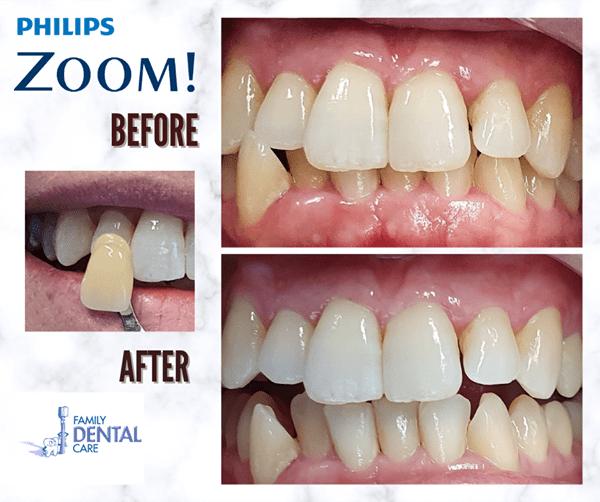 Campbelltown Family Dental Care Zoom bleaching november 2020