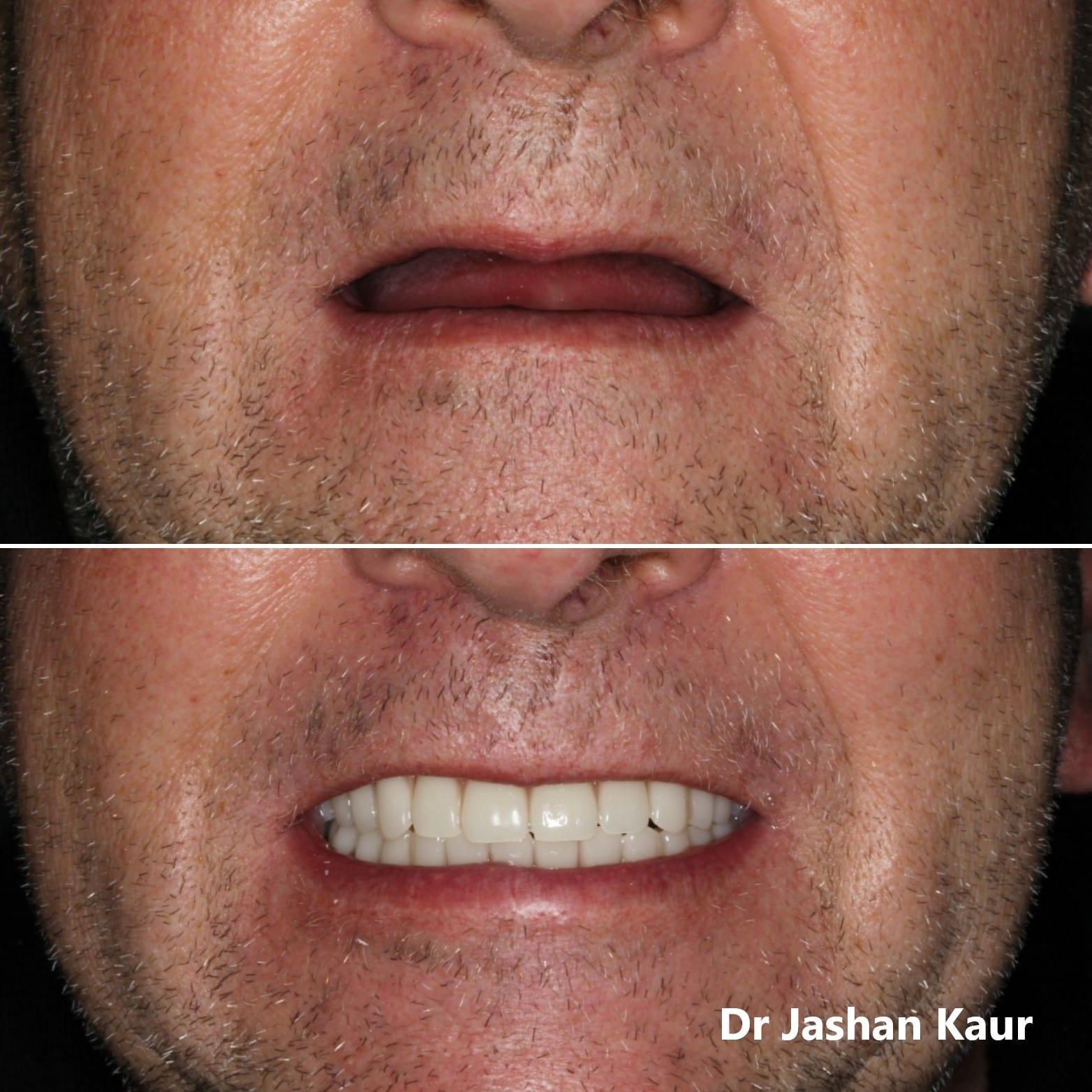 Campbelltown Family Dental Care full upper and full lower denture