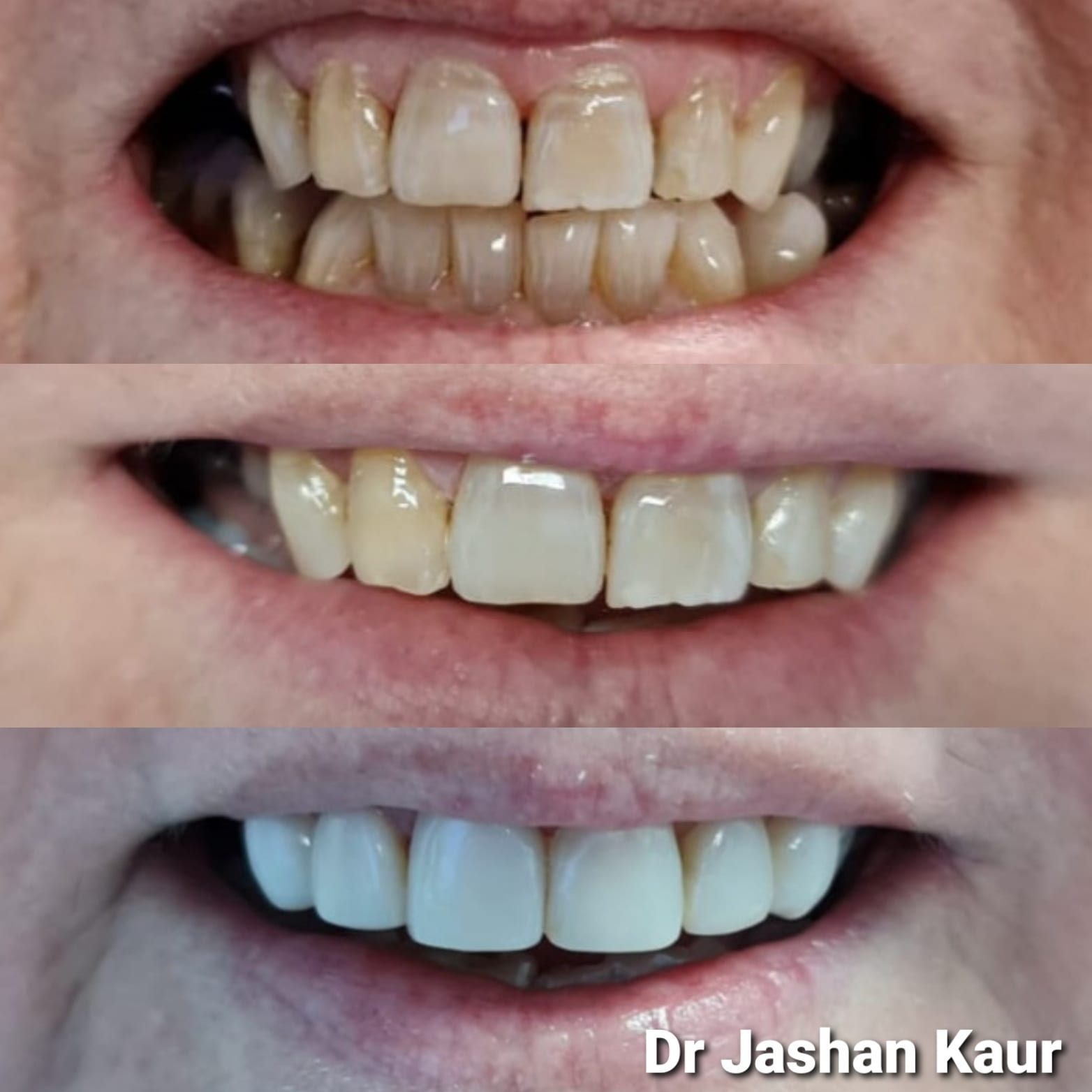 Campbelltown Family Dental Care composite venners x6 60year old female