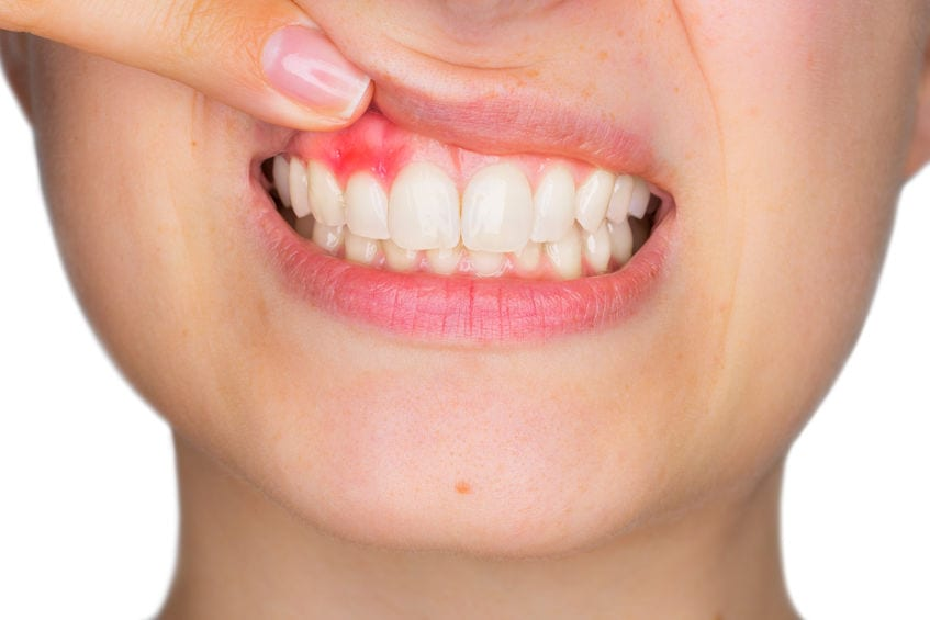 What Causes Mouth Sores? Tips to Treat and Prevent Them