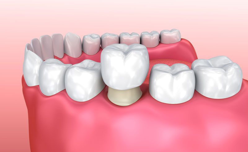 All you need to know about crowns and dental bridges