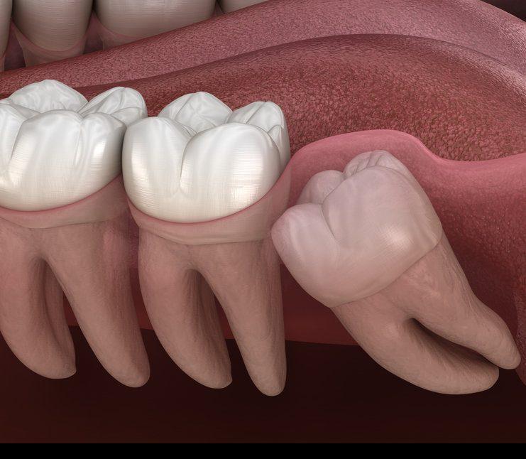 Common Wisdom Tooth problem